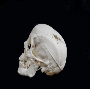 S43D - Printed Skull